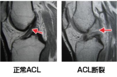 正常ACLとACL断裂の写真