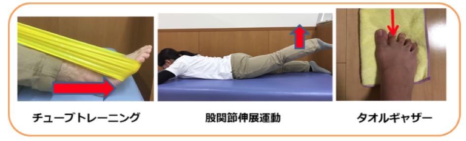 シンスプリントの筋力トレーニング