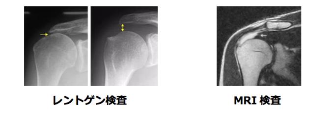 レントゲン検査・MRI検査・超音波検査