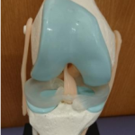 meniscusinjury1