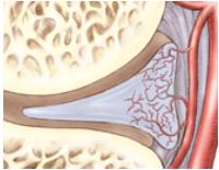 meniscusinjury4
