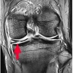 meniscusinjury5