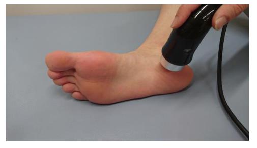 足底腱膜炎 物理療法
