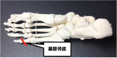 ジョーンズ骨折(第5中足骨疲労骨折)
