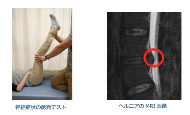 腰部椎間板ヘルニアの診断