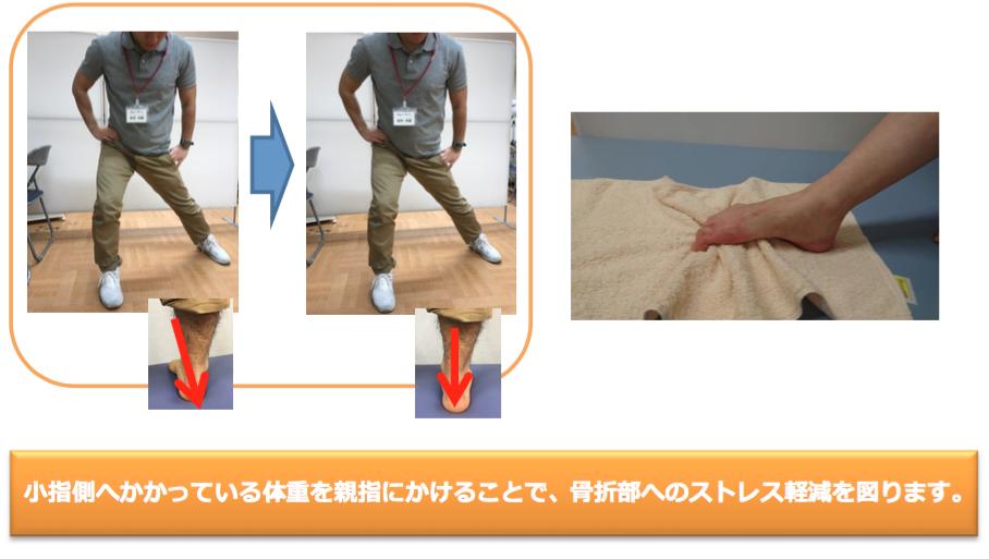 小指側へかかっている体重を親指にかけることで、骨折部へのストレス軽減を図ります。