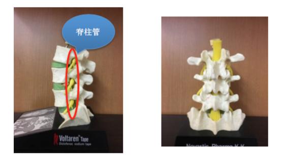 脊柱管とは