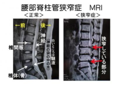 腰部脊柱管狭窄症 診断
