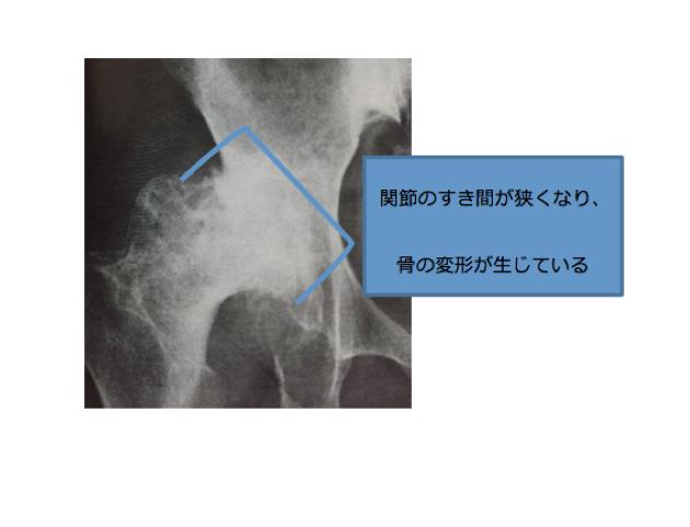 変形性股関節症 原因
