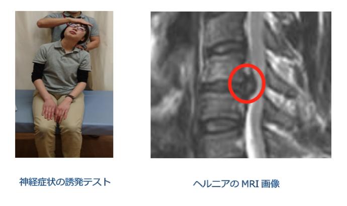 頚椎椎間板ヘルニア 診断