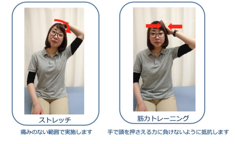 頚椎椎間板ヘルニア 治療