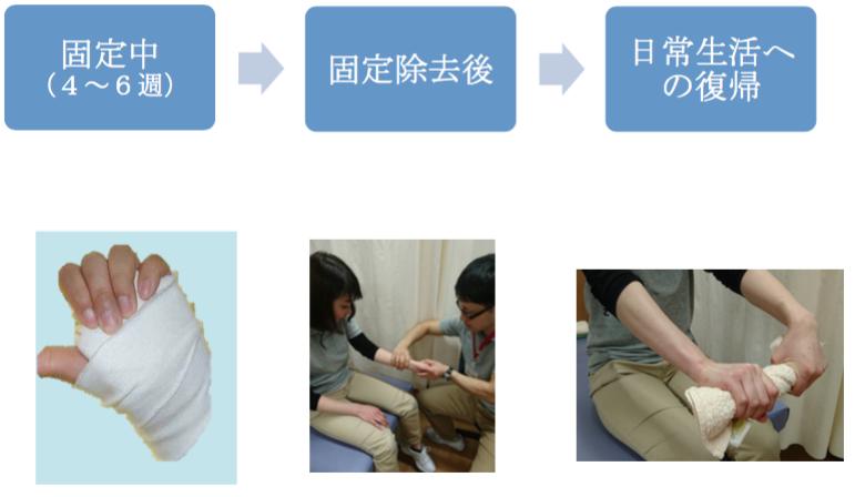橈骨遠位端骨折 診断