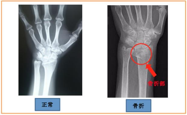 手首の骨折 (橈骨遠位端骨折) ...
