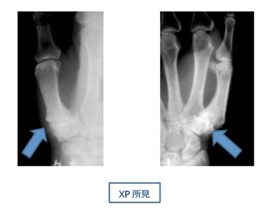 母指CM関節症の診断