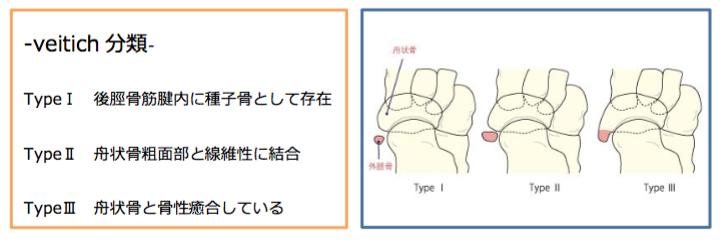 有痛性外脛骨の診断