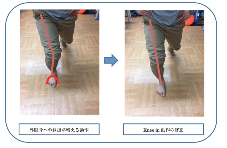 有痛性外脛骨の運動療法