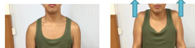 肩甲骨周囲筋の筋力強化