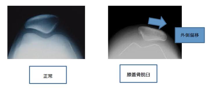 膝蓋骨脱臼の診断