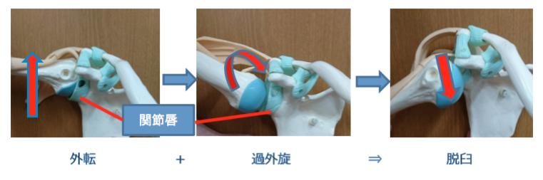 >反復性肩関節脱臼 外転・外旋