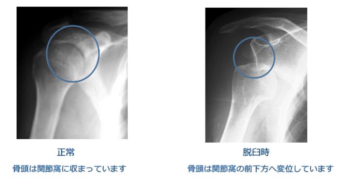 反復性肩関節脱臼 アプリヘンジョンテスト