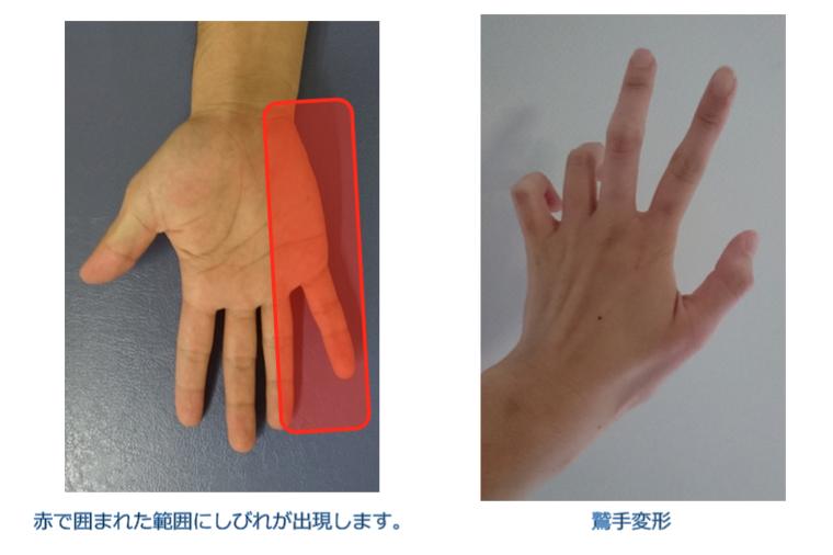 肘部管症候群の症状